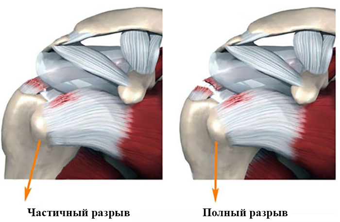 Изображение - Как лечить разрыв сухожилий плечевого сустава razr122-3
