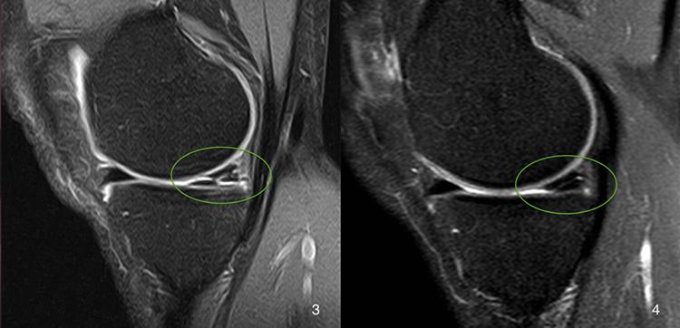 Изображение - Дегенеративное изменение хрящей коленного сустава razr55