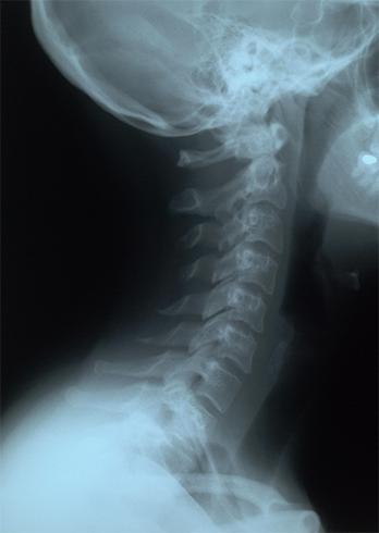 Рентген шеи