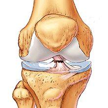 Разрыв крестообразной связки колена: что это, симптомы и лечение
