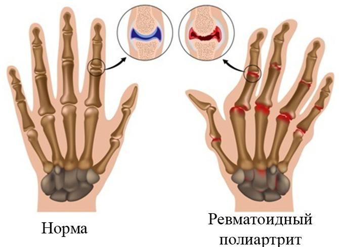 Норма и ревматоидный полиартрит