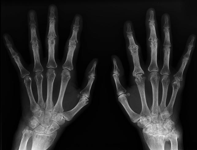 Симптомы артрита пальцев и кистей рук
