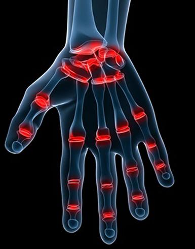 Рука с болезнью