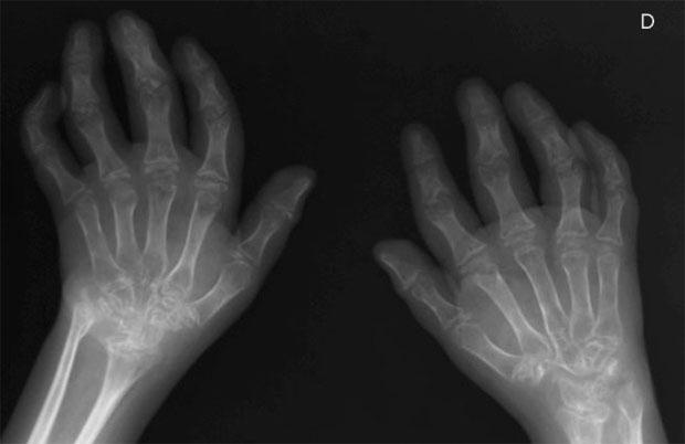 Снимок рук