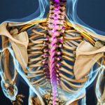 Шейно-грудной радикулит: причины, симптомы и лечение