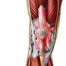 Тендинит коленного сустава: симптомы и методы лечения