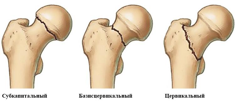 Виды переломов шейки