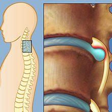 Грыжа шейного отдела позвоночника: симптомы, диагностика и лечение