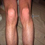Вывих коленного сустава: симптомы, диагностика и лечение