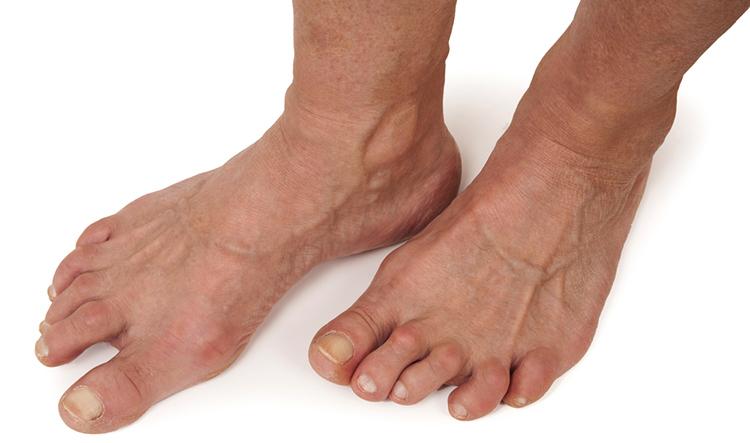 Симптом артрита