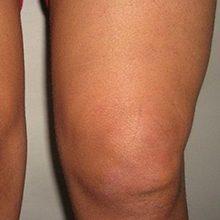 Синовит коленного сустава: виды, симптомы и лечение (с фото)