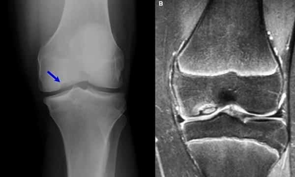 Снимок колена при болезни