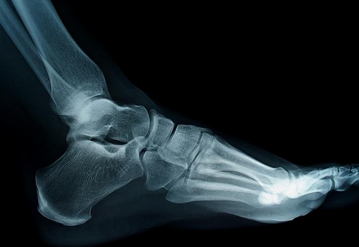 Снимок ноги