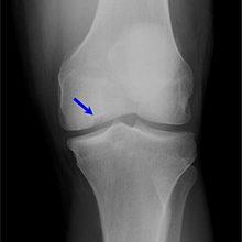 Остеохондроз коленного сустава: степени, симптомы и лечение