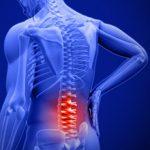 Спондилез пояснично-крестцового отдела позвоночника: причины, симптомы и лечение
