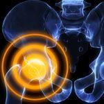 Хруст в тазобедренном суставе: причины, чем это опасно и что делать
