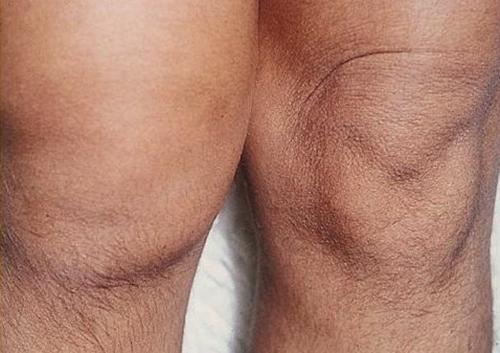 Изображение - Теносиновит лучезапястного сустава лечение tennos122
