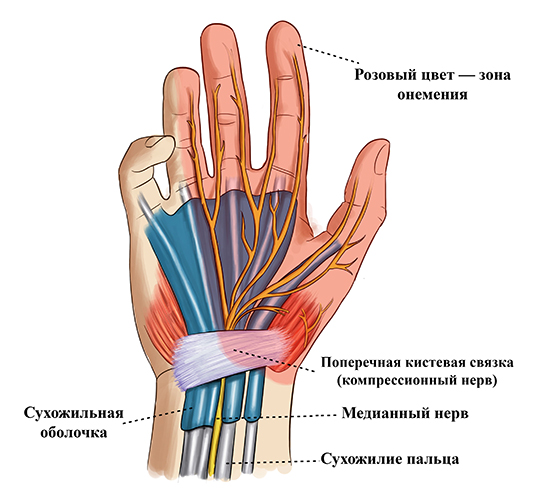 Изображение - Лучезапястный сустав руки tunn11-2
