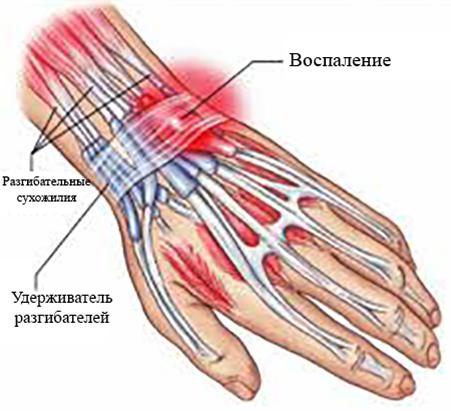 Изображение - Лучезапястный сустав руки uf111-1