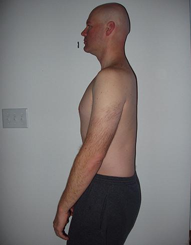 У мужчины плоская спина