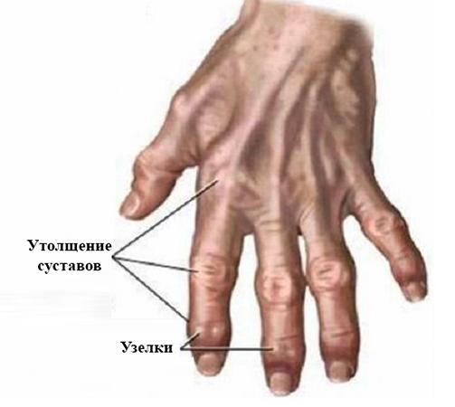 Остеоартроз рук