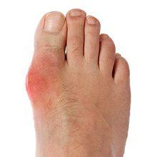 Подагрический артрит: причины, симптомы и методы лечения
