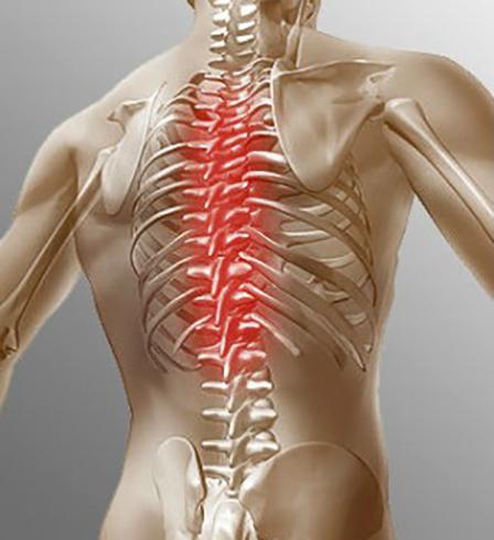 Вид грудного остеохондроза