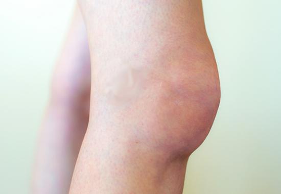 Изображение - Отек в области коленного сустава vid_otek