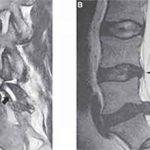 Дорзальная грыжа диска: что это такое, классификация, симптомы и лечение