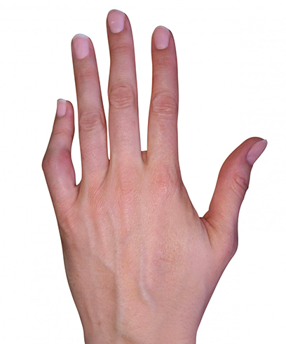 Как выглядит вывих пальца