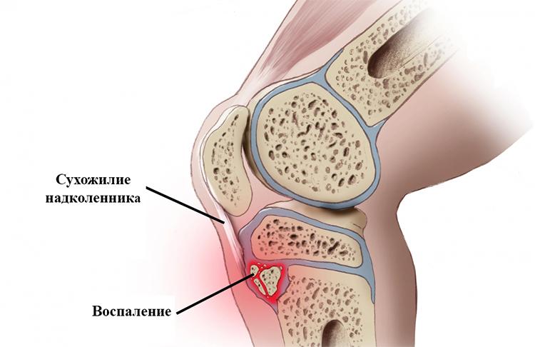 Болезнь Шляттера коленного сустава