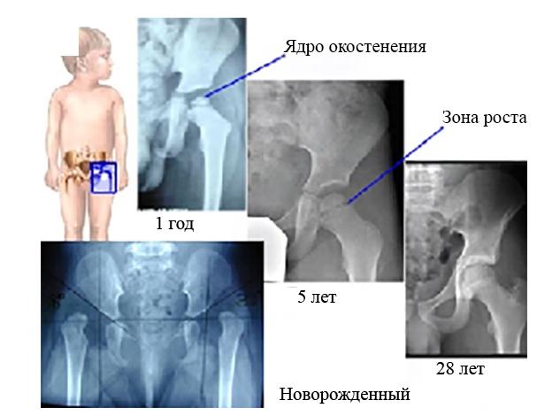 Ядра окостенения тазобедренных суставов