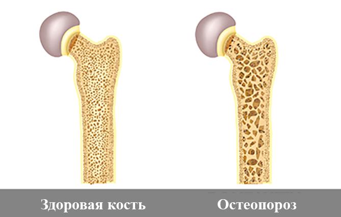 Здоровая кость и остеопороз