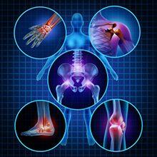 Хронический артрит — классификация, симптомы и лечение