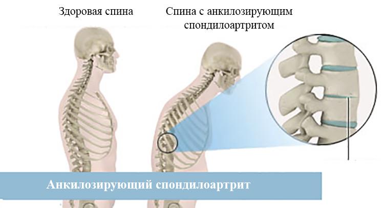 Норма и Анкилозирующий спондилоартрит