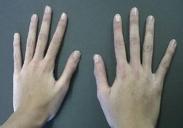 Симптомы арахнодактилии