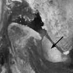 Артроз височно-нижнечелюстного сустава: симптомы, диагностика и лечение