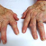 Кривые пальцы на руках: причины и что делать
