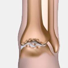 Артрит голеностопного сустава: причины, симптомы и лечение