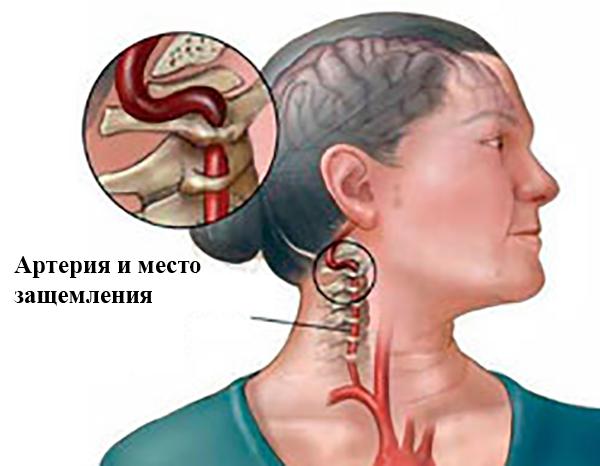 Артерия и защемление