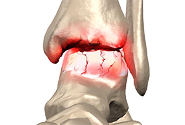Что нельзя есть при артрозе колена