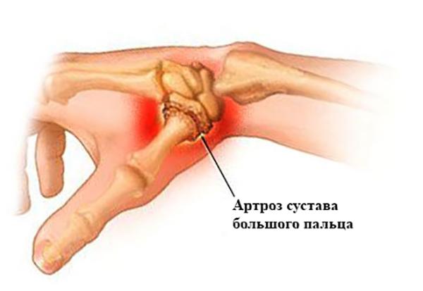 Симптомы артроза большого пальца руки