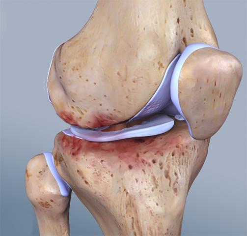 Как выглядит артроз колена