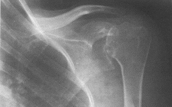 Изображение - Асептический некроз головки плечевого сустава aseep12