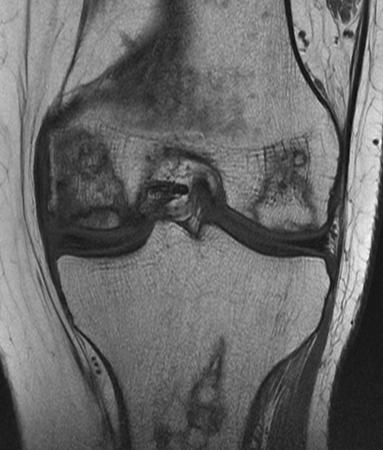 Асептический некроз коленного сустава на снимке