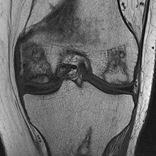 Асептический некроз коленного сустава: причины, стадии, диагностика и лечение
