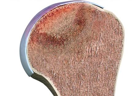 Асептический некроз головки плечевой кости