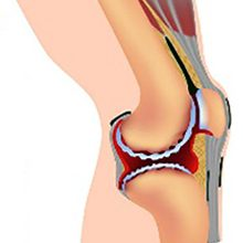 Деформирующий артроз коленного сустава: причины, степени и лечение
