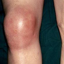 Подагрический артрит коленного сустава: симптомы, диагностика и лечение