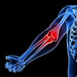 Контрактура локтевого сустава: классификация, диагностика и лечение